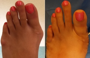 Bunion Pictures Before and After Surgery