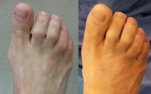 Minimally Invasive Bunion Surgery Pictures Before and After Operation