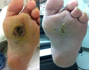 Healed Diabetic Foot Ulcer/Wound after surgery