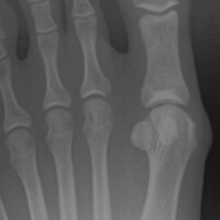 Bunion – Joint is nice and clean with wide space