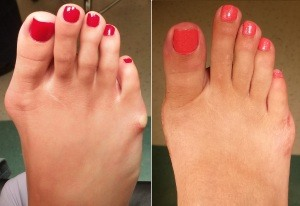 Bunion Picture Pre Op and Post Op 3 months after surgery