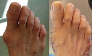 Before and After Bunion Surgery Pictures