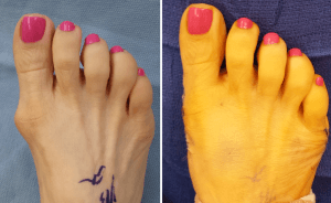 Bunion surgery pictures before and after