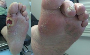 Closed foot diabetic ulcer after a simple surgery