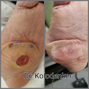 Diabetic Foot Ulcer Healed After Surgery in Orange County