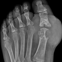 End Stage Gouty Arthritis of the Big Toe Joint